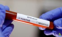 Caxias do Sul confirma três novos casos de Coronavírus nas últimas 24h